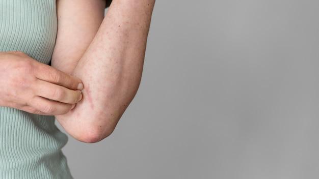 Allergie cutanée sur le bras de la personne avec espace de copie
