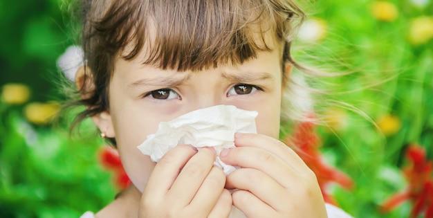 Allergie saisonnière chez un enfant. coryza. mise au point sélective.