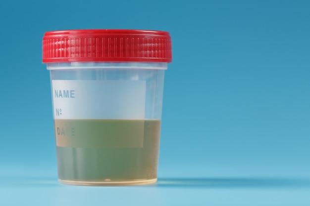 Analyse d'urine dans le pot de banque isolé