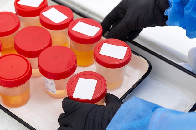 Analyse d'urine en laboratoire. test d'urine médical. échantillon d'urine pour analyse en laboratoire.