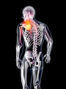 Anatomie - épaule blessée