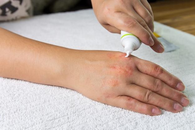Application de la pommade et de la crème émolliente dans le traitement et l'hydratation de la peau