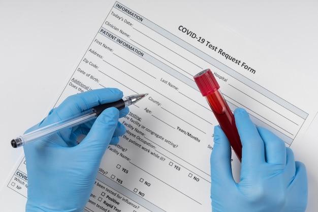 Arrangement d'échantillon de sang de coronavirus en laboratoire