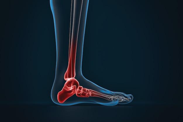 Arthrite de la cheville. radiographie du pied. vue latérale