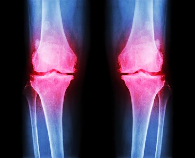 Arthrose film de genou radiographie du genou