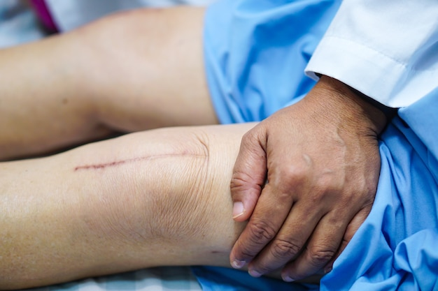 Asiatique dame âgée vieille femme patiente montre ses cicatrices chirurgicales remplacement total de l'articulation du genou.
