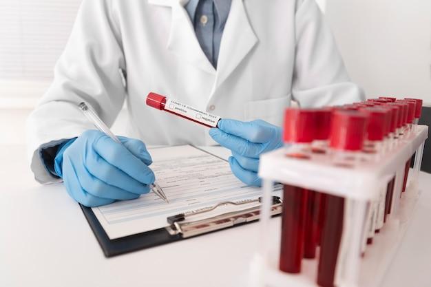 Assortiment d'échantillons de sang de coronavirus en laboratoire