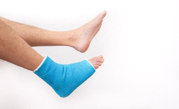Attelle de cheville bleue. jambe bandée moulée sur patient de sexe masculin sur fond blanc isolé. concept de blessure sportive.