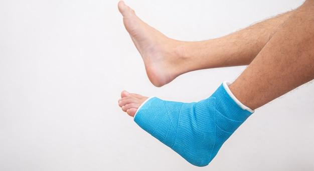 Attelle de cheville bleue. jambe bandée moulée sur patient de sexe masculin sur un mur blanc isolé. concept de blessure sportive.