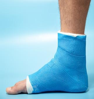 Attelle de cheville bleue. jambe bandée moulée sur un patient de sexe masculin sur un mur flou bleu clair. concept de blessure sportive.