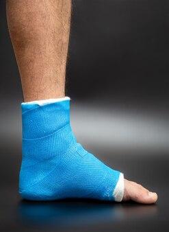 Attelle de cheville bleue. jambe bandée moulée sur un patient de sexe masculin sur un mur flou foncé. concept de blessure sportive.