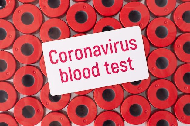 Autocollant blanc sur les tubes à essai sanguin avec inscription test sanguin de coronavirus en laboratoire. test sanguin sur le dangereux virus covid-19