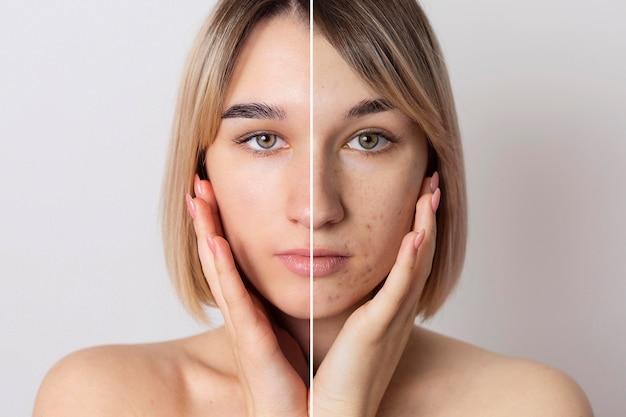 Avant et après portrait de femme retouché