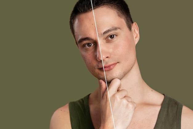 Avant et après portrait de jeune homme retouché