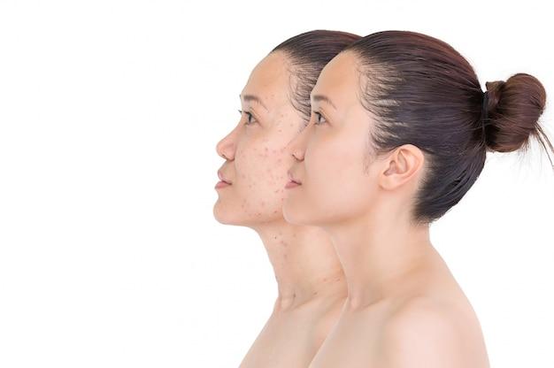 Avant et après traitement au laser