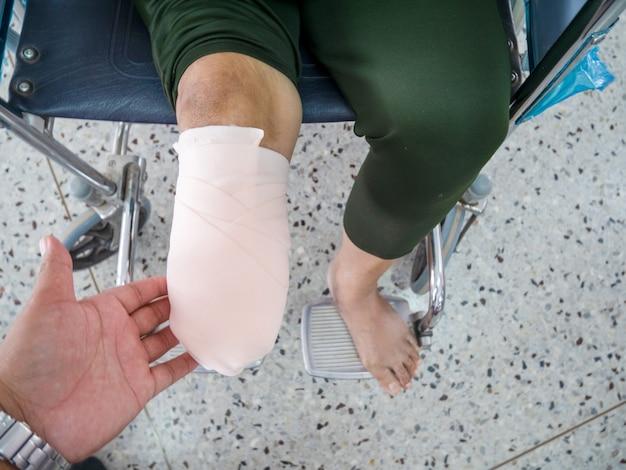 Bandage élastique dans l'amputation du diabète sucré bk