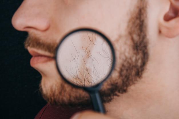 Barbe sous une loupe. les cheveux sur le visage d'un homme se bouchent.