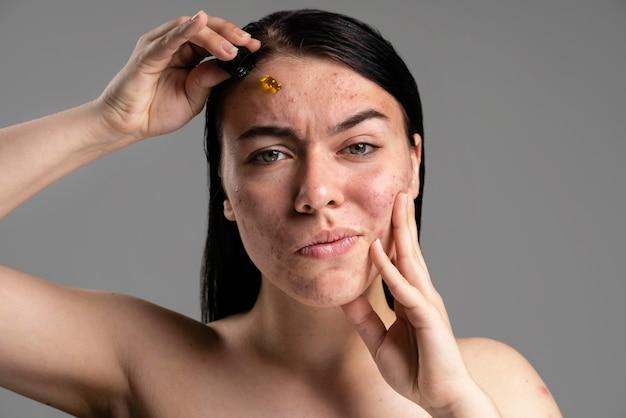 Belle femme montrant son acné avec confiance
