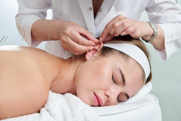 Belle femme se reposant sur un lit ayant un traitement d'acupuncture avec des aiguilles dans et autour de son oreille