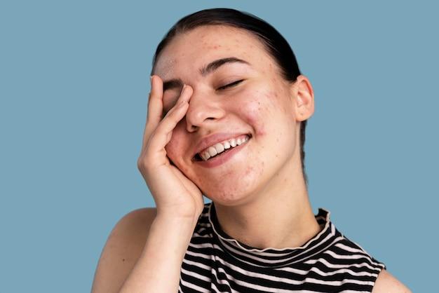 Belle jeune femme avec de l'acné