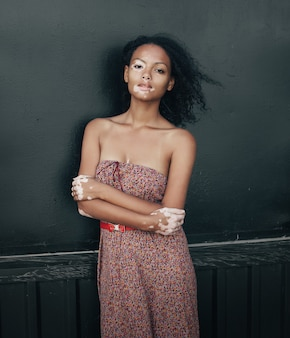Belle jeune femme brune atteinte du vitiligo