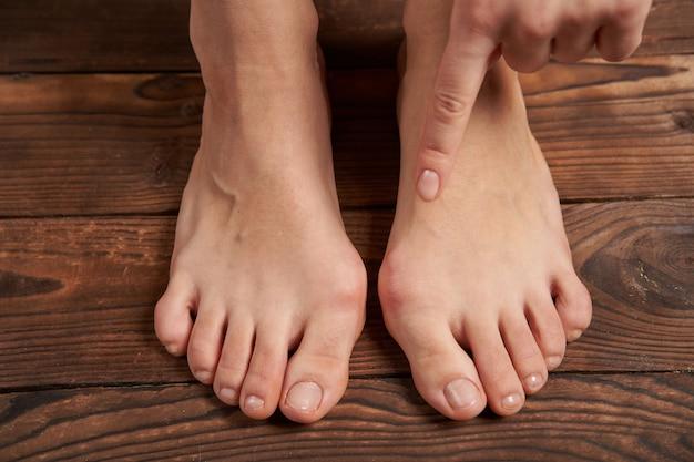 Blessure douloureuse sur une jambe féminine