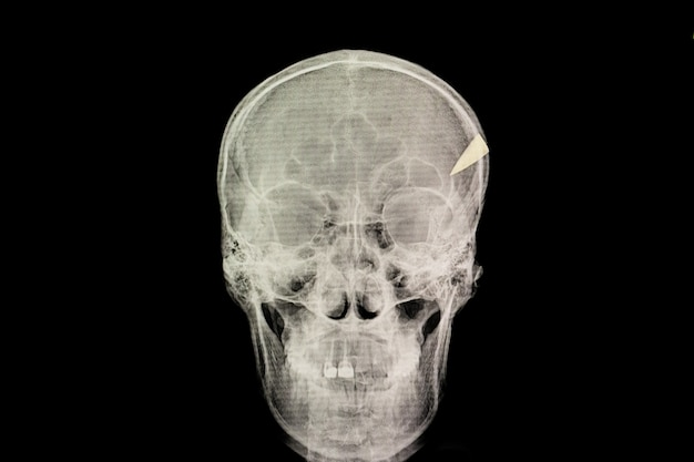 Blessure de pénétration du crâne