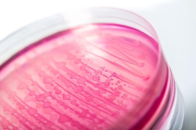 Boîte de pétri avec des colonies bactériennes sur la base, vue rapprochée