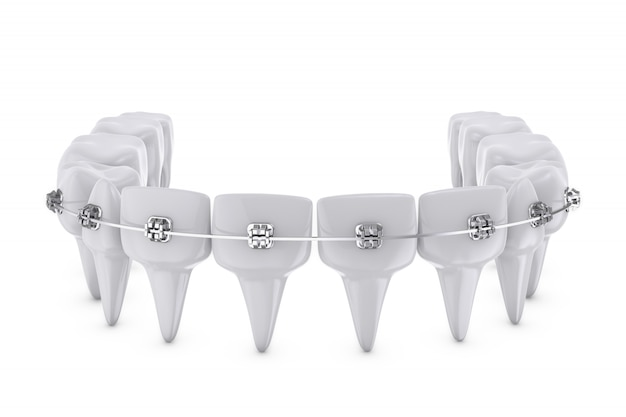 Brackets dentaires