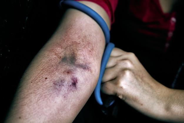 Le bras d'une femme est meurtri par la prise de stupéfiants par voie intraveineuse, une femme tire la main avec un garrot...