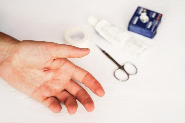 Callus déchiré de la peau rugueuse de plan rapproché de main de la main masculine