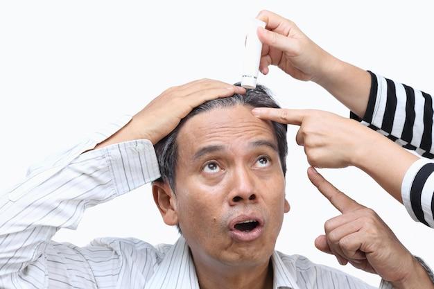La calvitie (perte de cheveux) a conduit à la crise de la quarantaine