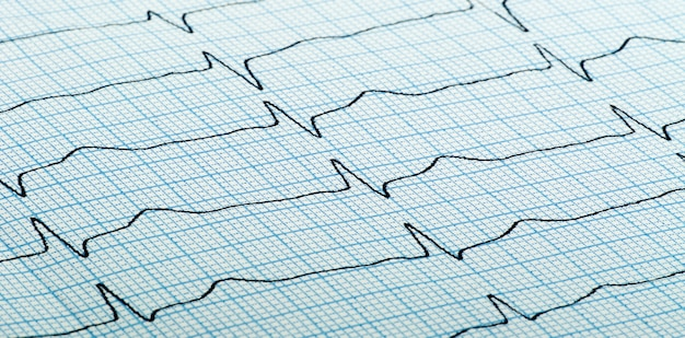 Cardiogramme (aka électrocardiogramme, aka ecg) du rythme cardiaque sur papier quadrillé bleu
