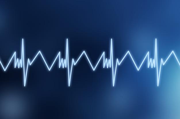 Cardiogramme cardiaque