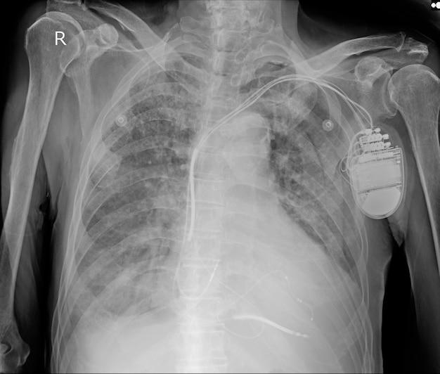 Cardiomegalie légère. le fabricant de rythme est placé sur la radiographie de la poitrine d'un homme de 85 ans.