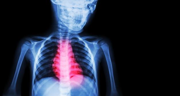Cardiopathie ischémique, infarctus du myocarde (im)