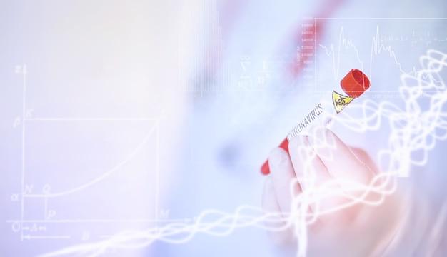 Un chercheur de fond en laboratoire teste des médicaments pour le traitement de la pneumonie virale. test sanguin de coronovirus des patients infectés. pandémie mondiale.