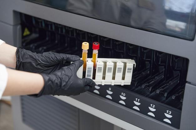 Une chercheuse scientifique mettant un tube à essai avec un échantillon de sang dans une machine médicale d'analyseur
