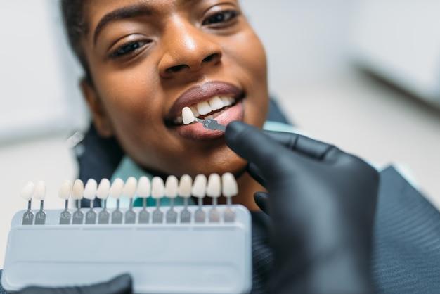 Choisir la procédure de teinte des dents