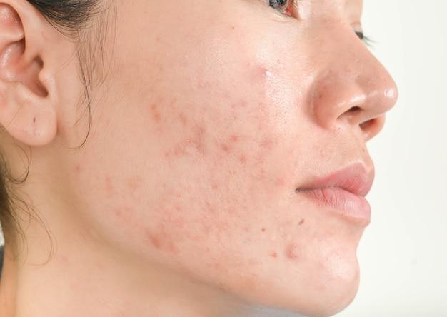 La cicatrice de l'acné sur le visage
