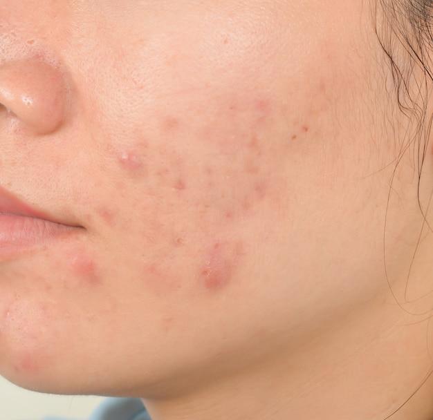 Cicatrice d'acné sur le visage