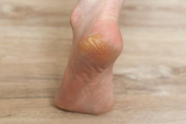 Clavus et fissures sur le talon du pied féminin en gros plan