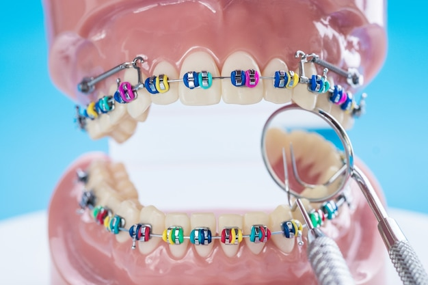 Close up outils de dentiste et modèle orthodontique - modèle de dents de démonstration de variétés de brackets ou orthèses orthodontiques
