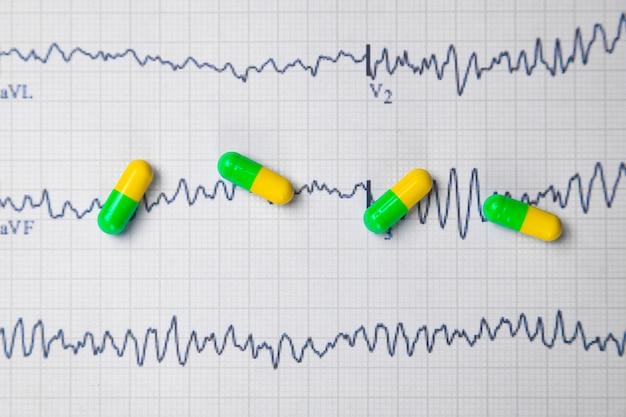 Comprimés multicolores sur une feuille d'électrocardiogramme
