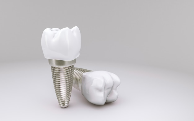 Concept d'implant dentaire sur blanc