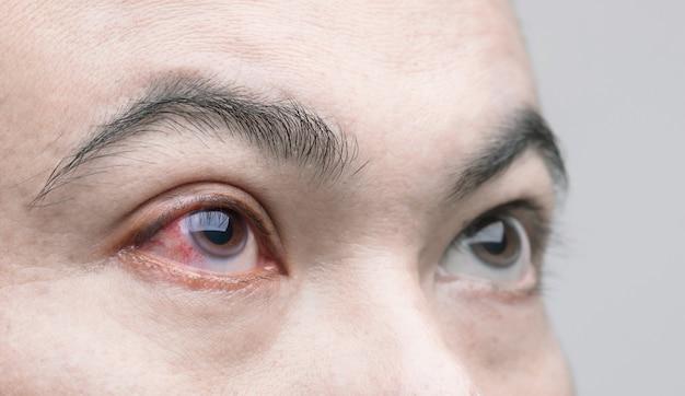 Concept d'irritation oculaire: œil rouge macro de l'homme, conjonctivite oculaire ou après avoir obtenu de la poussière