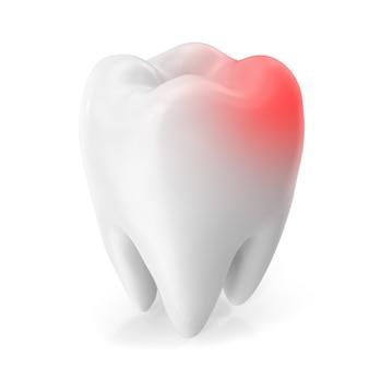 Concept de maux de dents, concept de caries isolé sur fond blanc. rendu 3d