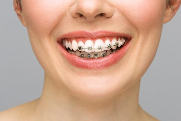 Concept de soins dentaires de traitement orthodontique belle femme sourire sain gros plan en céramique et