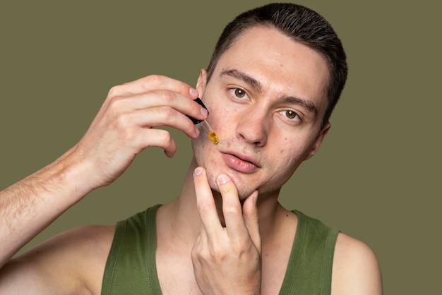 Confiant bel homme avec l'acné