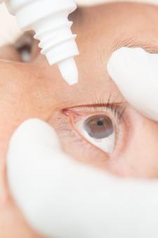 Conjonctivite dans les yeux des femmes